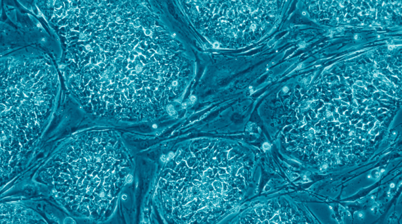 6,8M€ to nTRACK Project Designed to Study Multimodal Nanoparticles for Muscle Regeneration