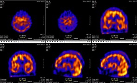 What are the main imaging technologies and how do they work?